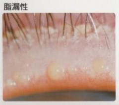 マイボーム腺のつまり、まつげの毛根に白いものがついています。