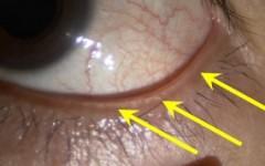 眼瞼縁に白いものがついています。眼瞼縁の異常所見です。